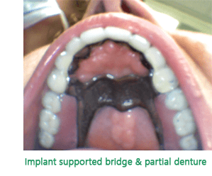 Yonge Eglinton Dentist Bridge Dentistry Implant
