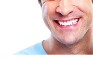 Yonge Eglinton Dentist Dental Bonding quick and painless