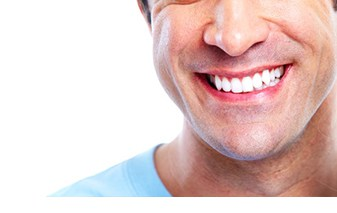 Yonge Eglinton Dentist Dental Bonding quick and painless
