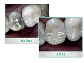 Yonge Eglinton Dentist Cosmetic Dentistry Before and After Composite Fillings
