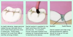 Yonge Eglinton Dentist dental sealants provide extra protection from cavities