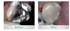 Yonge Eglinton Dentist white fillings replace silver mercury